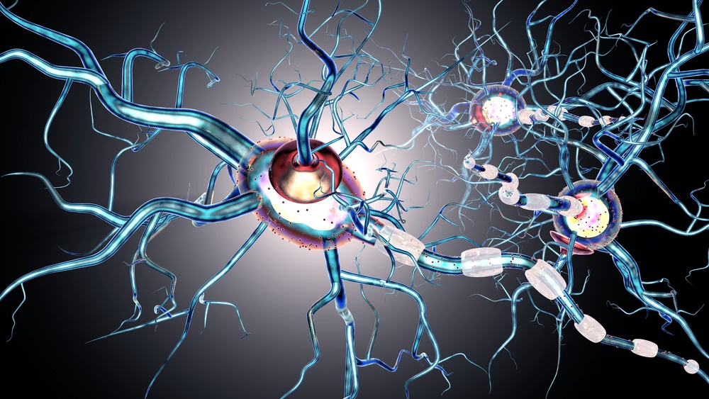multiple sclerosis_2