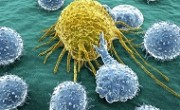 cancer_cells_limphosits_main