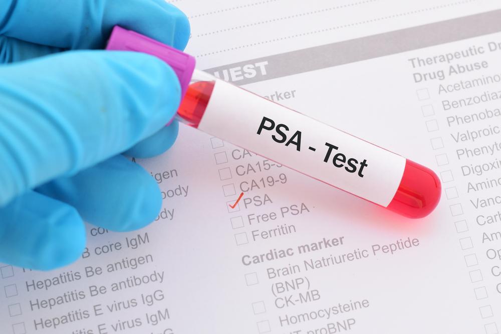 Tест на простат-специфический антиген неточен и ненадежен