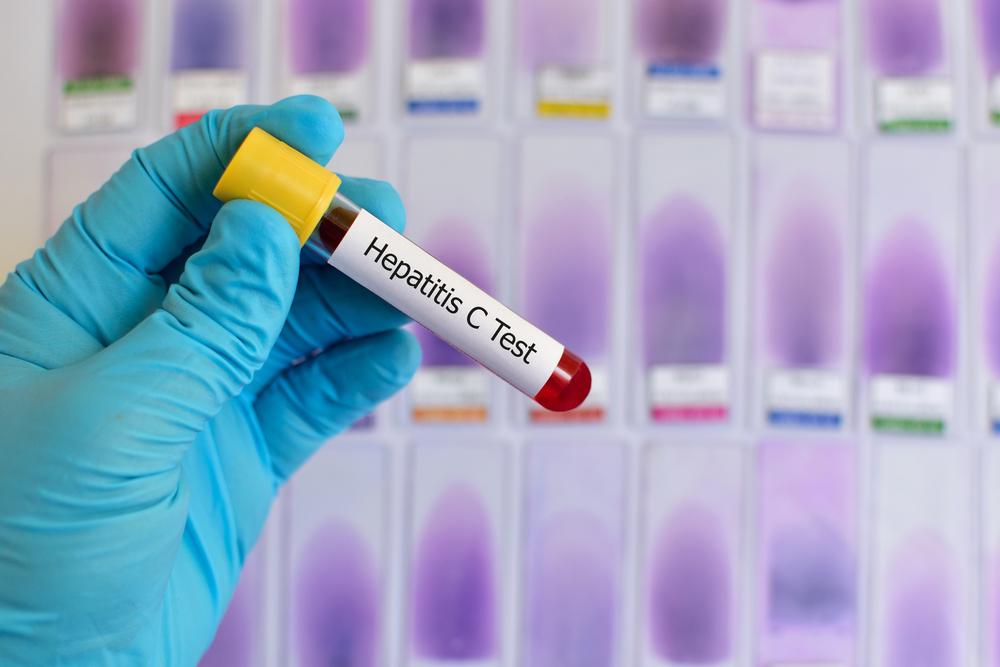 Проверка на гепатит - начало пути к исцелению