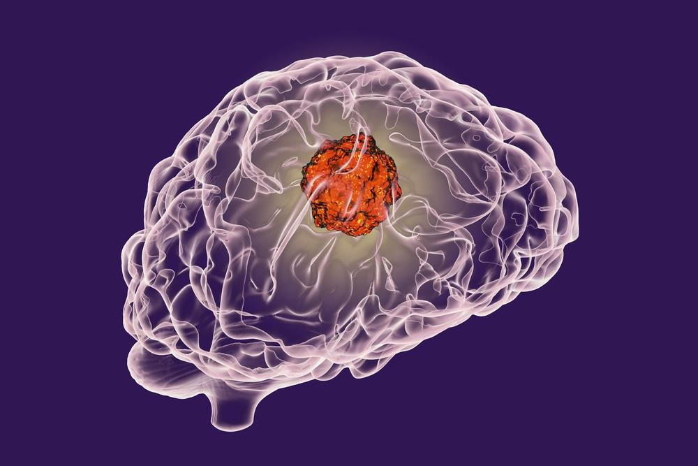brain_tumor